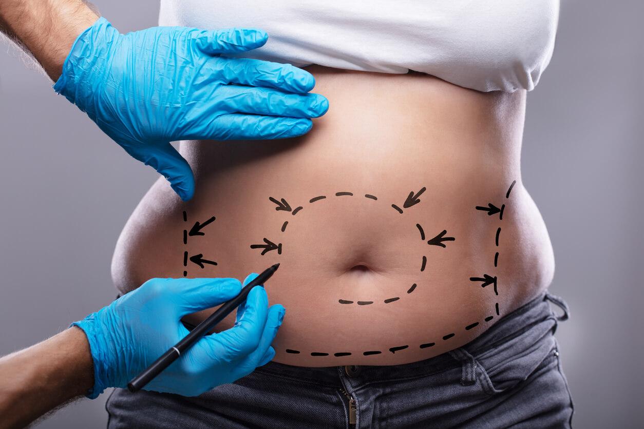 Lipoaspiração e lipoenxertia são procedimentos para gordura localizada