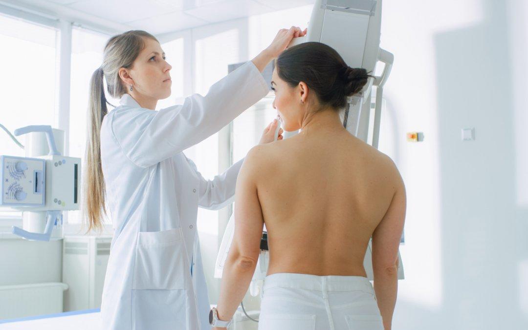 4 curiosidades: mitos e verdades sobre o exame de mamografia